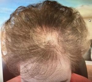 Jahrzehntelanger Nährstoffmangel der Kopfhaut
